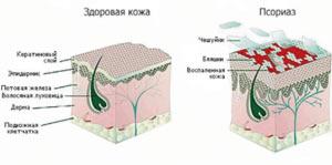 lechenie-psoriaza-na-tele