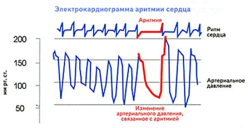 kardiogramma-serdca