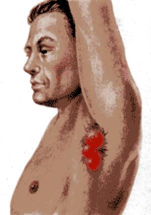 симптомы гидраденита
