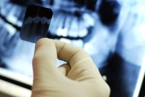 kakim-obrazom-provoditsya-rentgen-zubov-beremennoj-zhenshchiny