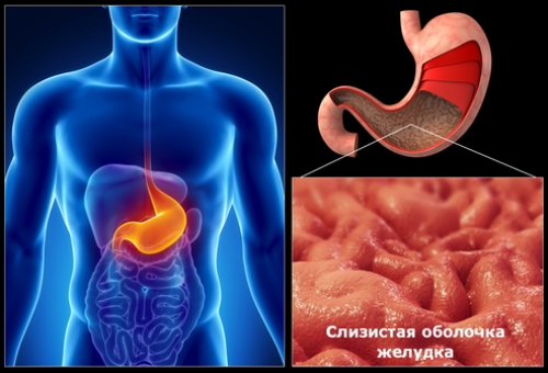 diagnoz-duodenit