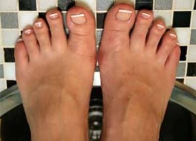 Грибок между пальцами ног - чем вылечить