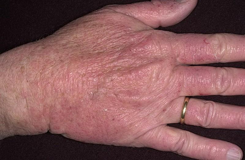 Эффективен ли солкосерил при псориазе