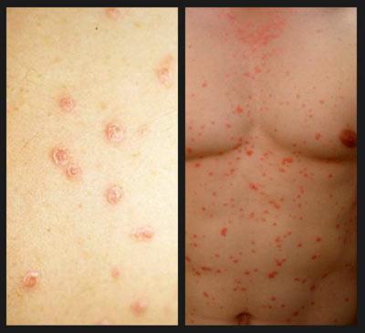 Псориаз - причины симптомы диагностика и лечение
