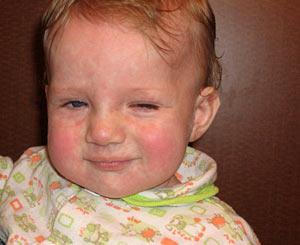 simptomy-toksoplazmoza-u-detej