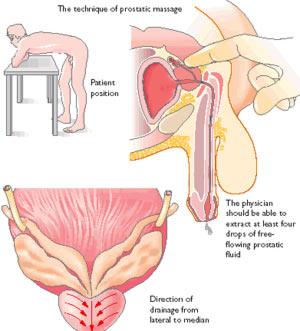 massazh-prostaty-doma-samostoyatelno