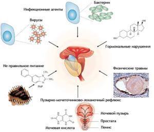 prichiny-vozniknoveniya-prostatita-u-muzhchin