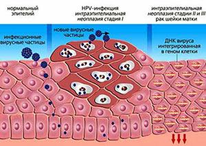 lechenie-papillomavirusnoj-infekcii-u-muzhchin