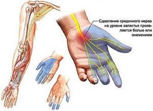 onemenie-palcev-ruk-nochyu-prichiny-i-lechenie-narodnymi-sredstvami