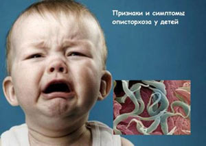 opistorhoz-simptomy-u-detej