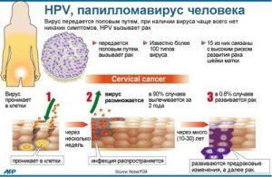 papillomavirusnaya-infekciya-kak-lechit