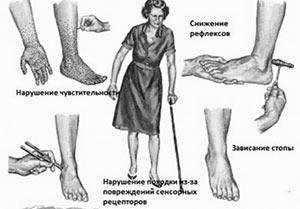 polinejropatiya