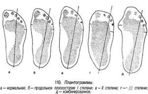 kak-opredelit-stepen-ploskostopiya