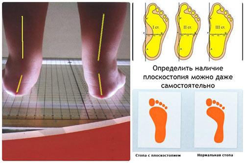 opredelenie-ploskostopiya-u-detej