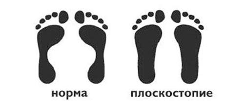 osnovnye-simptomy-ploskostopiya