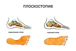 preduprezhdenie-iskrivleniya-pozvonochnika-i-razvitiya-ploskostopiya