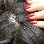 Противогрибковый шампунь для волос