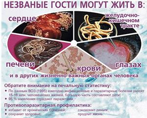 Признаки у человека заражения паразитами