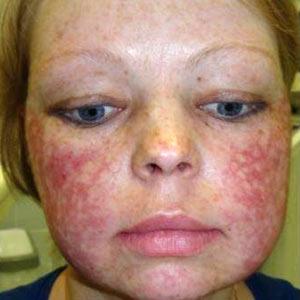 аллергия на холод симптомы у взрослых