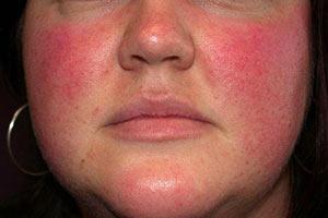 аллергия на витамины у детей фото