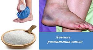 Лечение народными средствами растяжения связок голеностопа