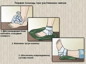 Растяжение связок голеностопного сустава - первая помощь